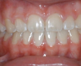 Frontal Intraoral Photo