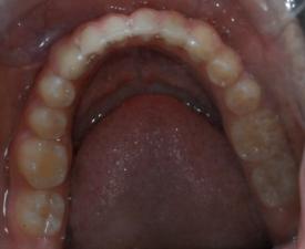 Occlusal Photo of Mandibular Dentition
